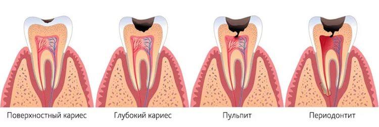 Лечение внутреннего кариеса